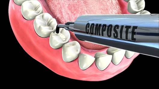 Composite Fillings Dental Education